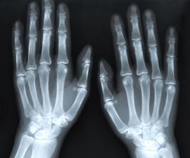 tronar dedos rayos x