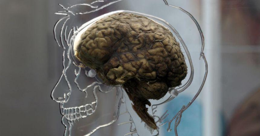 La contaminación afecta el cerebro humano
