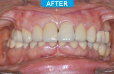 Cosmetic Dentistry - 1-4 (1)
