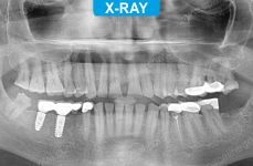 Implants - 1-2