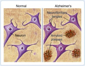 Plaques between neurons is one of the indicators of Alzheimer's Disease and seem to be increased with GCR exposure (Credits: American Health Assistance Foundation).
