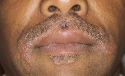 Allergic contact dermatitis due to dye for beards and moustaches