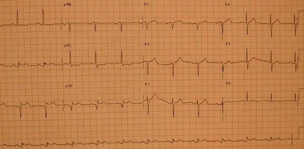 下心肌梗死的心电图