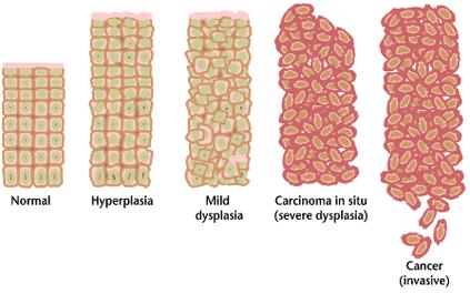 Dyslpasia Cancer Pathway Malignant Metastasis