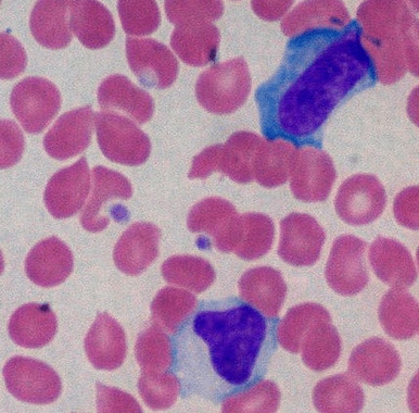 Atypical Lymphocyte