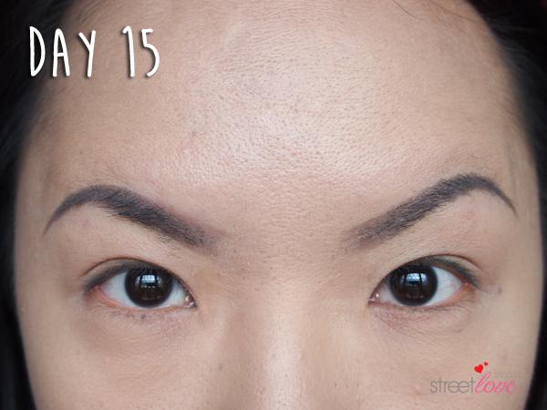 Renee Clinic Botox 13