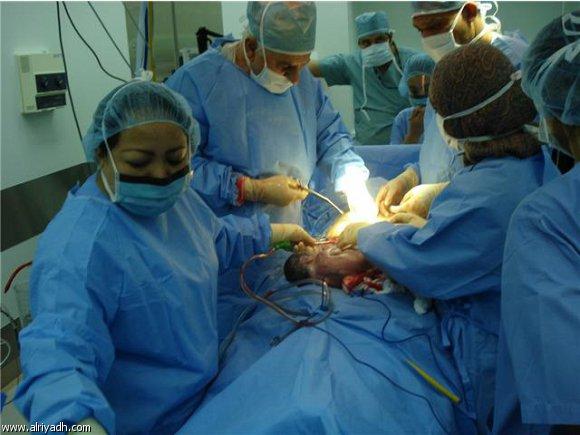 """بالصور: ولادة طفل بلا أنف.. """"يتنفس عبر الفم ويتغذى من فتحة بالرقبة"""""""