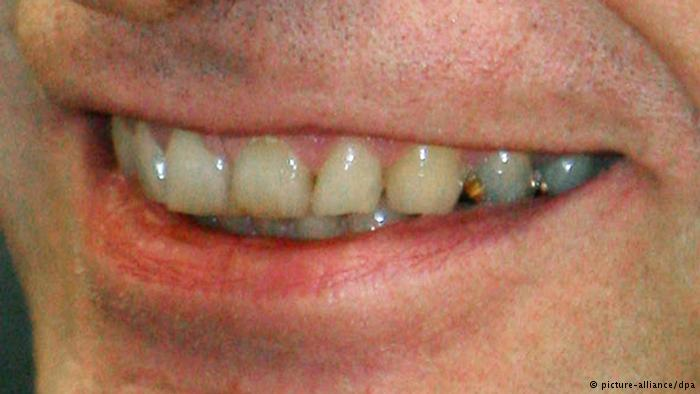ستة أسباب غير مألوفة لاصفرار الأسنان