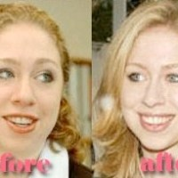 Chelsea Clinton Plastic Surgery Before After, Breast Implants