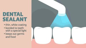 Dental sealants for all school children?