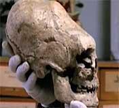 Elongated skull Siberia