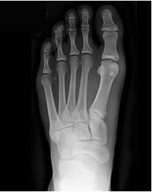 foot_xray