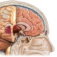 Brain-Tumors-treatment1_200