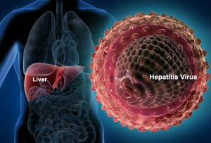 virus hepatitis