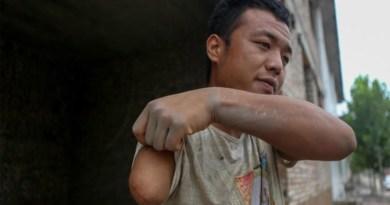 Tao Jinjin หนุ่มจีนแขนเดียวที่กลายเป็นเนตไอดอล