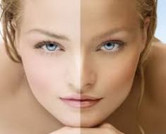 Reasons of Skin darkening during winters and its cure