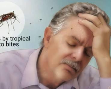 symptoms-of-dengue