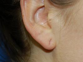 Piercing Shrinkage