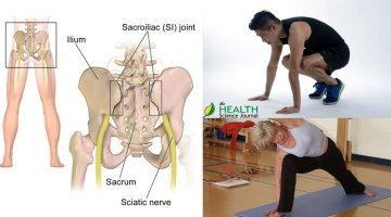 Hip Pain – Causes and How to Use Exercise to Address It