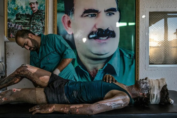3. Hasaka, Syria - August 1, 2015 A doctor rubs ointment on the burns of Jacob, 16, in front of a poster of Abdullah Ocalan, center, the jailed leader of the Kurdistan Workers' Party, at a YPG hospital compound on the outskirts of Hasaka. According to YPG fighters at the scene, Jacob is an ISIS fighter from Deir al-Zour and the only survivior from an ambush made by YPG fighters over a truck alleged to carry ISIS fighters on the outskirts of Hasaka. Six ISIS fighters died in the attack, 5 of them completely disfigured by the explosion.