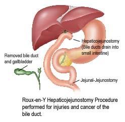 roux-en-y hepaticojejunostomy