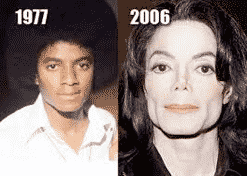 Plastic Surgery Gone Bad and Michael Jackson