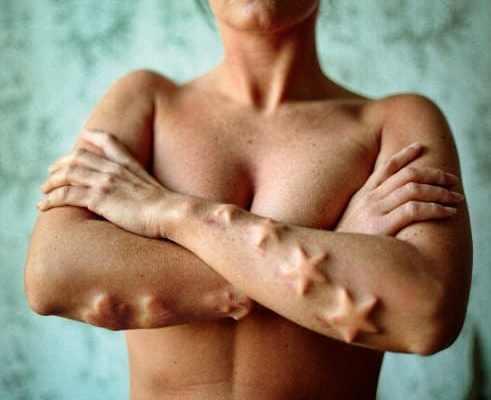 subdermal impants extreme body modifications