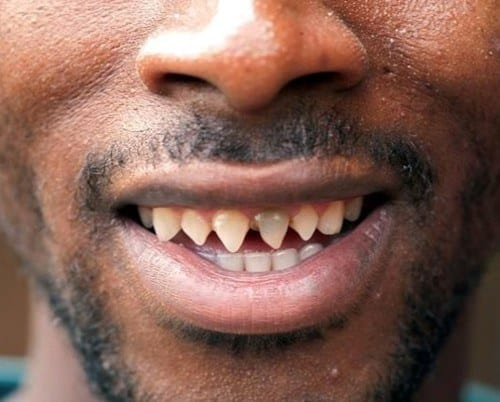 teeth sharpening extreme body modifications