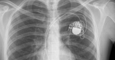 Pacemaker potentiellement piratable, et si on arrêtait de paniquer ?