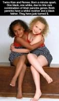 Le gemelle di due colori diversi