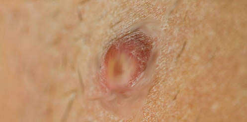 How Long Can The Genital Herpes Sores Last And Mine R So Painful? Did Urs Hurt That Bad? 3