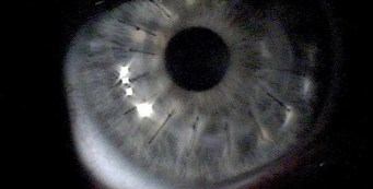 Your 101 Guide to the Corneal Transplant Surgery