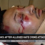 California Gay Man Beaten Unconscious by Attacker Using Homophobic Slurs: VIDEO