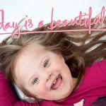 Hội chứng Down (Down Syndrome)