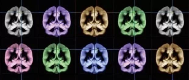 Kyoto University brainscans showing happiness region 620