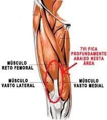 novo músculo tvi quadríceps