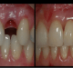 incredible-discovery-say-goodbye-to-the-dental-implants-grow-your-own-teeth-in-9-weeks