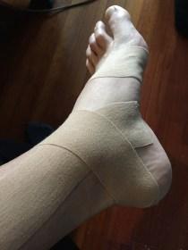 (多分)骨折日記 4日目 — 走れない、歩けないもどかしさ [骨]
