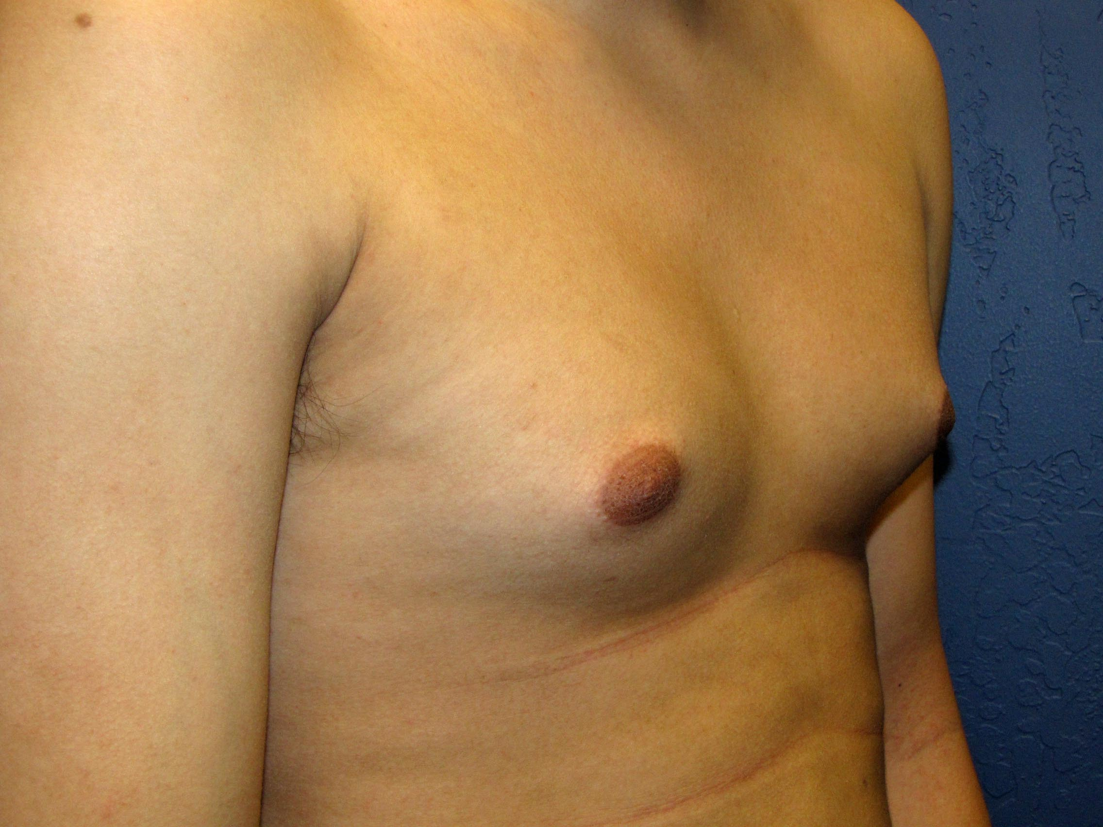 best breast implants before and after