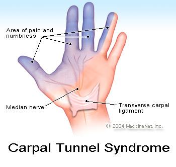 carpal_tunnel