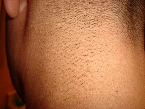 Intense Pulse Light on Mens hair