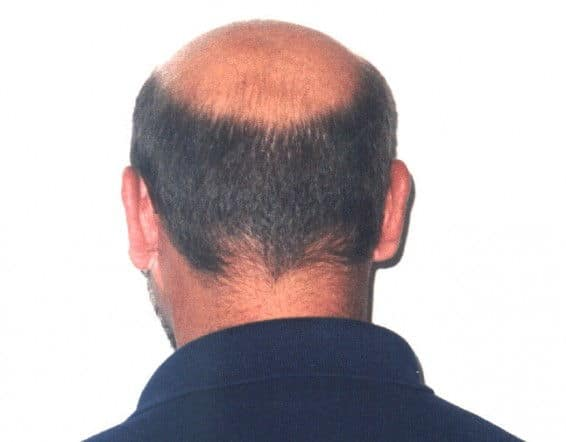 man with horseshoe hair