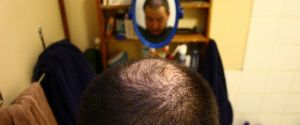 Ways to Delay and Prevent Hair Loss – Oh the Joys of Getting Older…