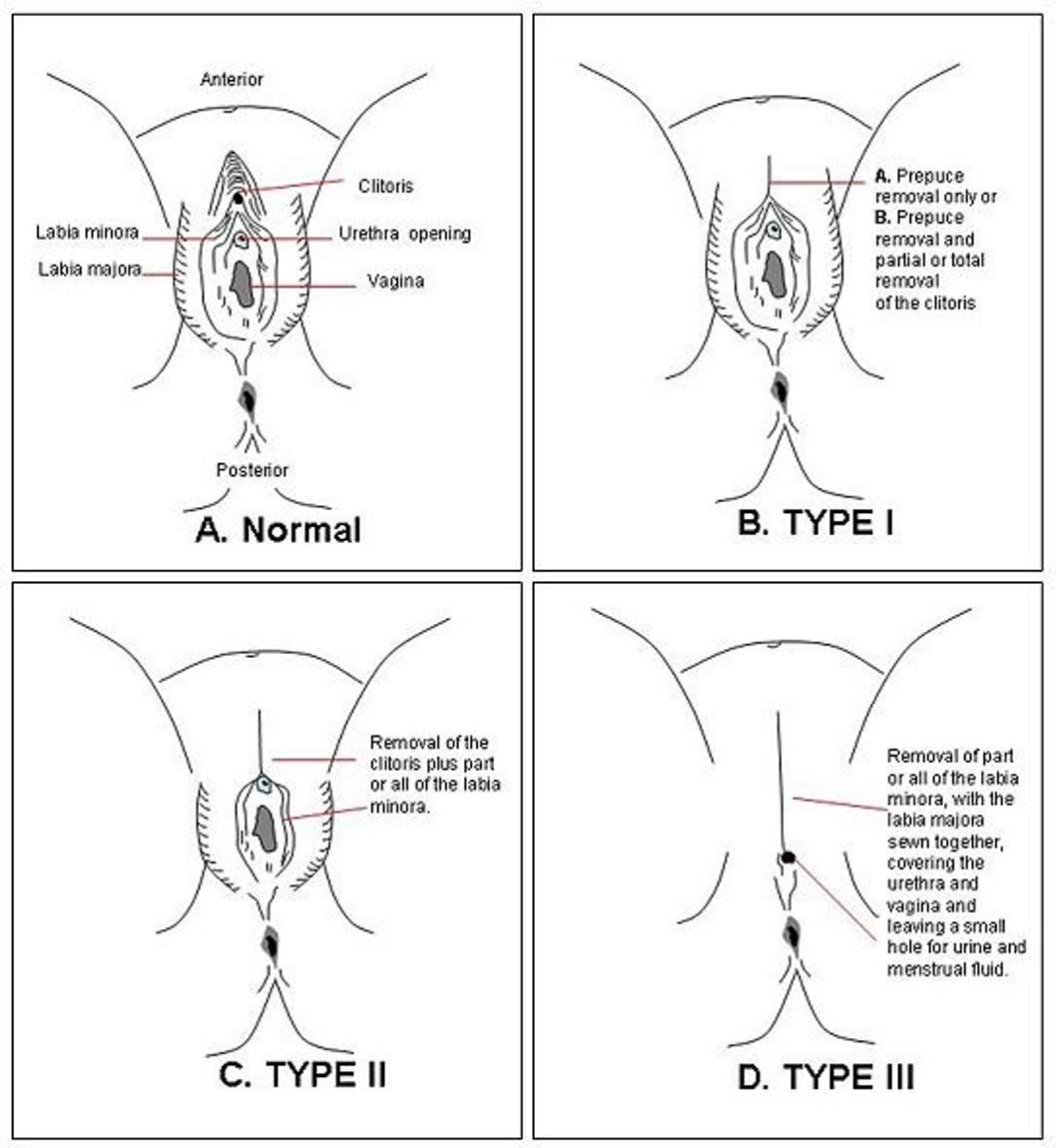 clitoridectomy