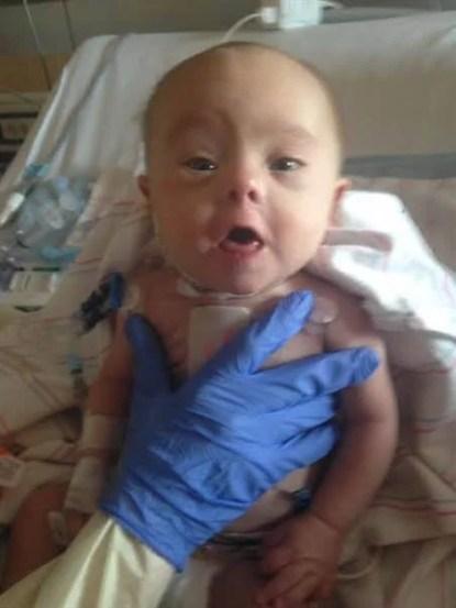neonato operato