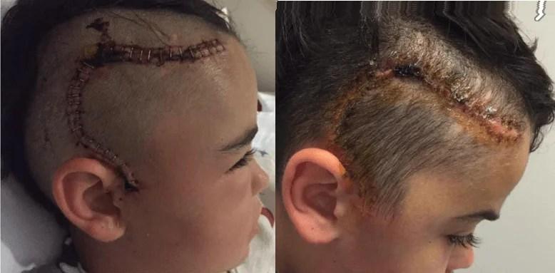 """""""Mio figlio ha rischiato di morire"""": l'appello di una mamma su Facebook - FOTO"""