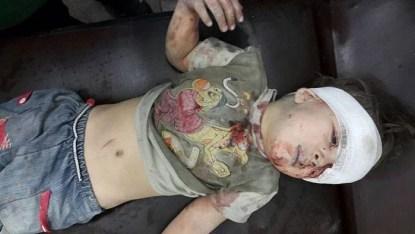 bambino siriano ferito