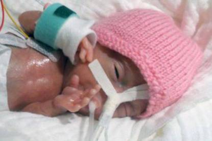 pay-smallest-ever-prem-baby-to-survive-was-only-31-cm-long
