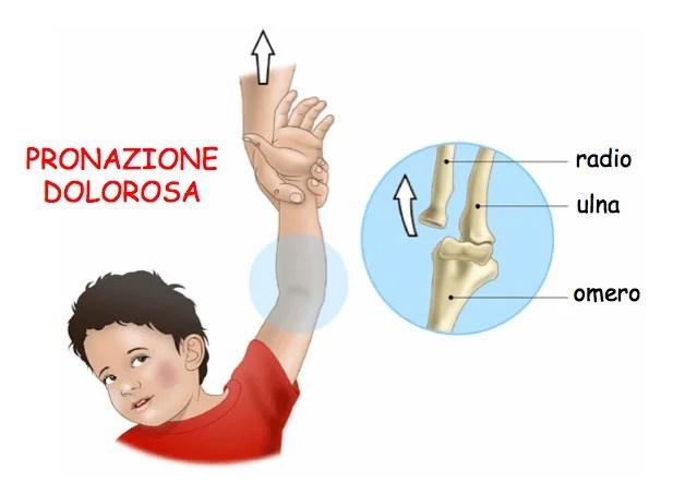 pronazione-dolorosa