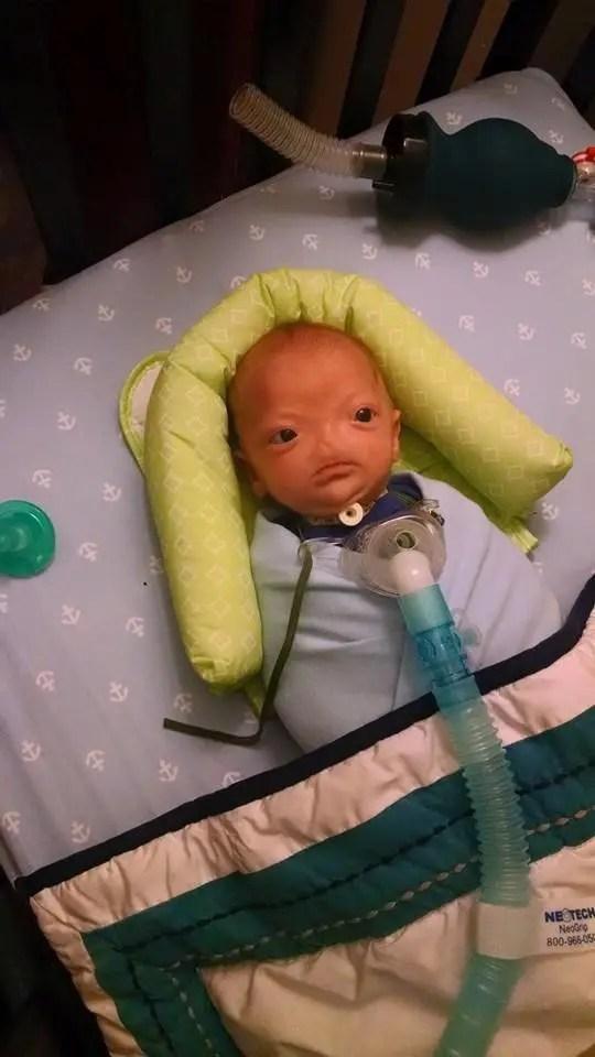 bebé-nacio-sin-nariz-mes
